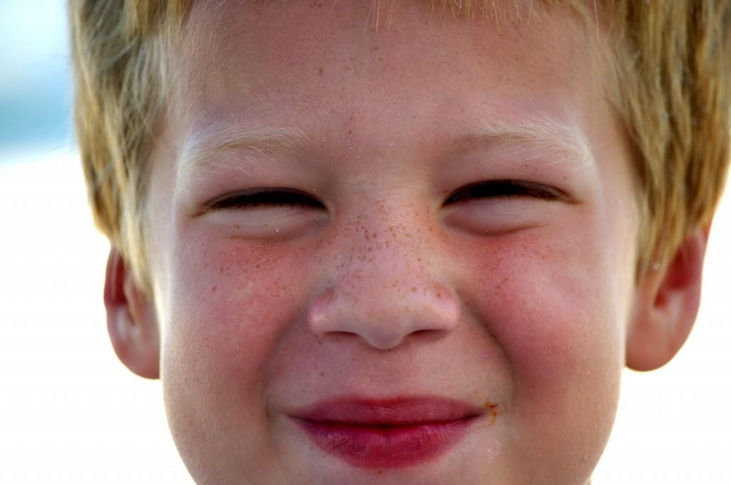 OMG! Freckles!